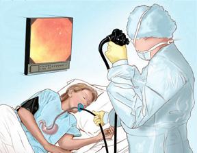 como-se-hace-una-endoscopia