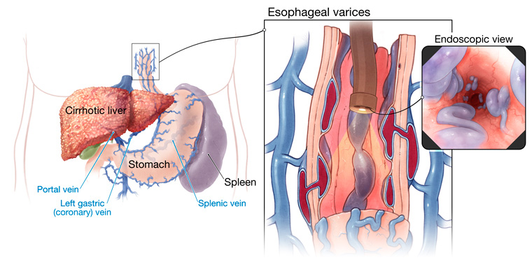 varices-esofagicas
